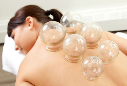 Cupping Photo